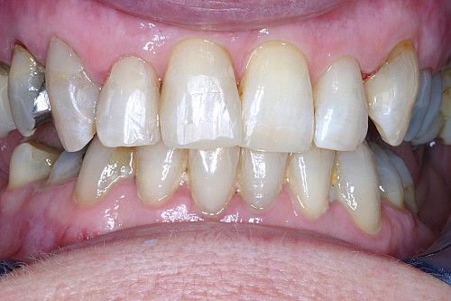 Cosmetic Fillings - After Treatment