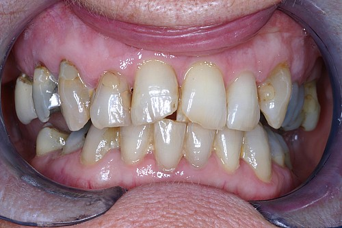 Cosmetic Fillings - Before Treatment