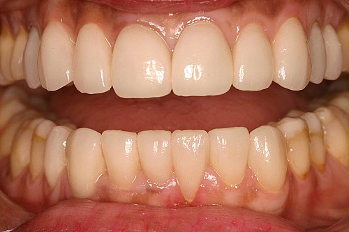 Crown and Bridges - After Treatment