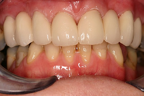 Emax Crown and Bridge - After Treatment
