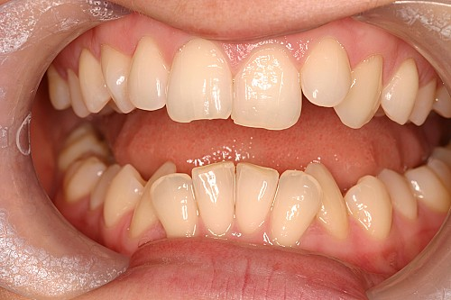 Orthodontic Case 2 Before