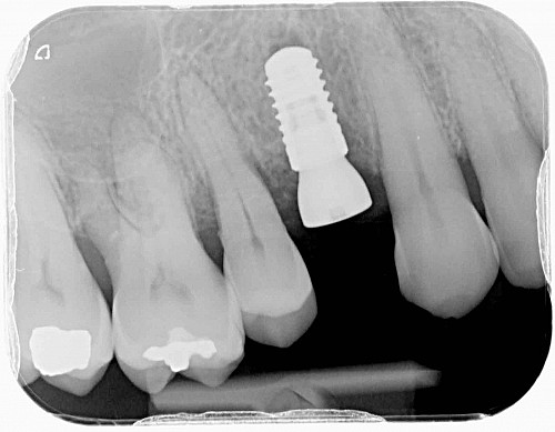 Implants - X-Ray During Treatment