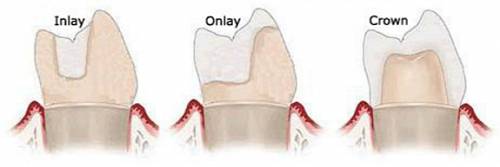 Difference between  an Inlay, Onlay & Crown