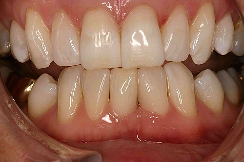 Inman Aligner - Case 1 After Treatment
