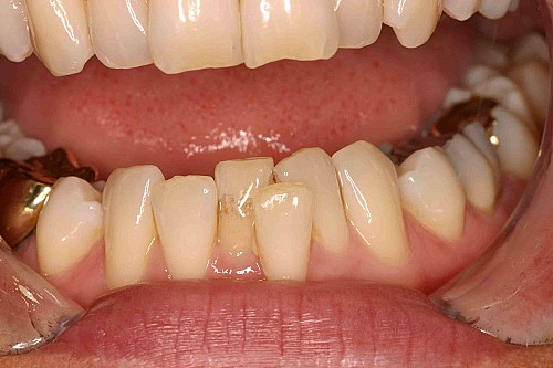 Inman Aligner - Case 1 Before Treatment