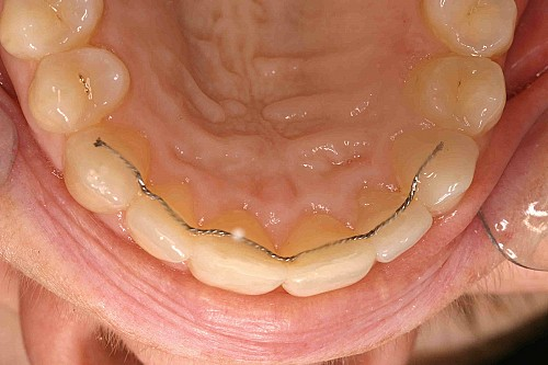 Inman Aligner - Case 2 After Treatment