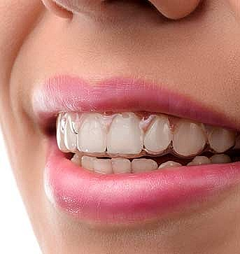 Invisalign System at Firs Dental, Birtsall, Leicester