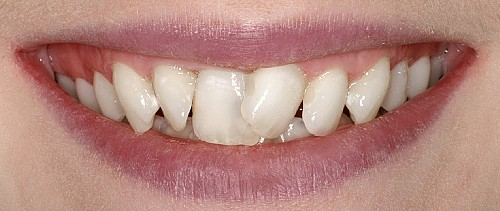 Six Month Smiles Case 1 - Before Treatment