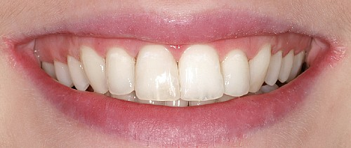 Six Month Smiles Case 1 - After Treatment