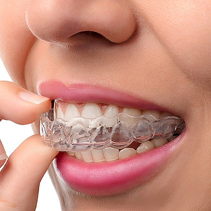Invisalign System at Firs Dental, Leicester