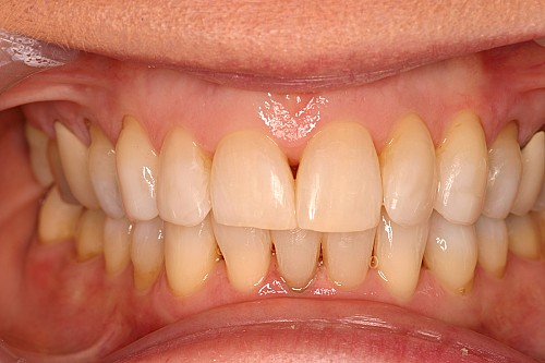 Six Month Smiles Case 2 - After Treatment