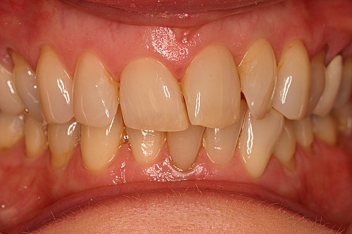 Six Month Smiles Case 2 - Before Treatment