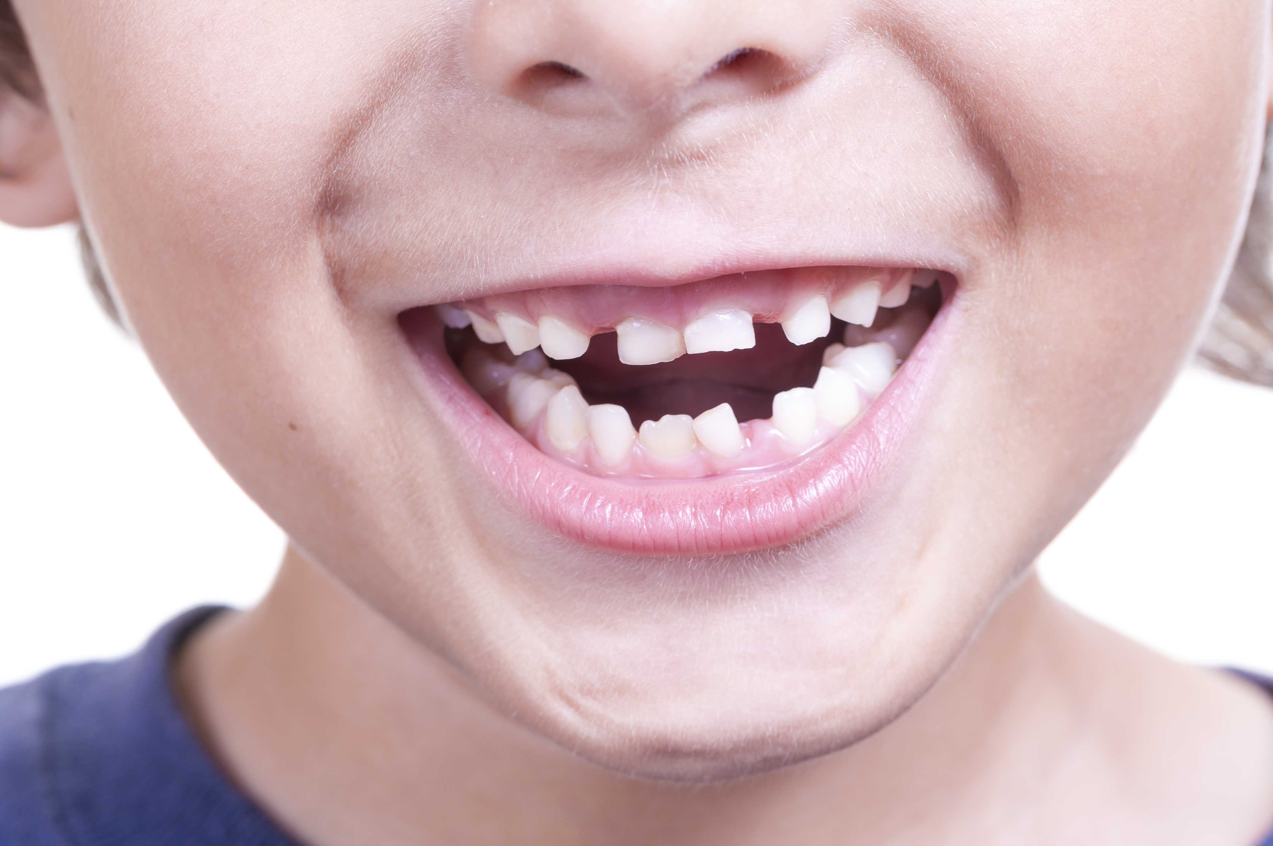 Private Orthodontic Treatment at Firs Dental