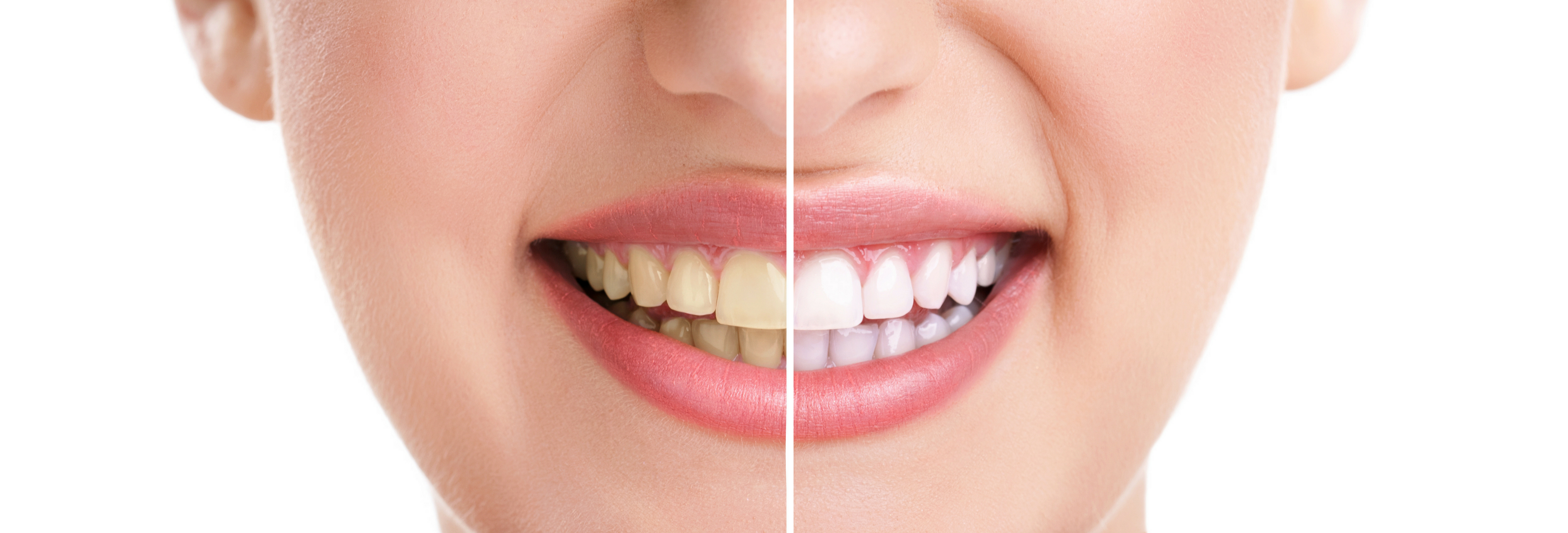 Airflow Stain Removal and Teeth Whitening