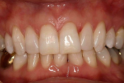 Teeth Whitening - After Treatment