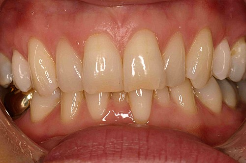 Teeth Whitening - Before Treatment